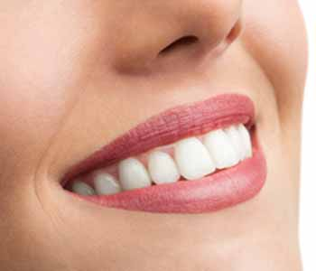 Dr. Palmer Dental Implants What is the cost of a dental implant for a Greenville, SC area patient?