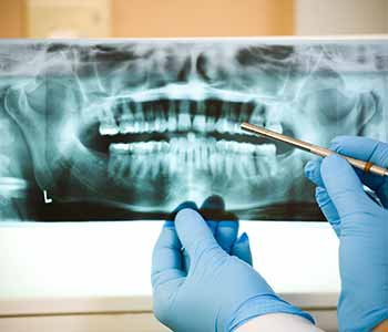 Dr. Palmer Dental Implants Dental implant process is simplified with Greenville dentist