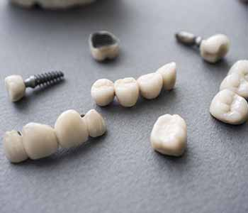 "Dr. Palmer Dental Implants Greenville, SC patients ask, ""What is the effectiveness of Zirconia implants for missing teeth?"""