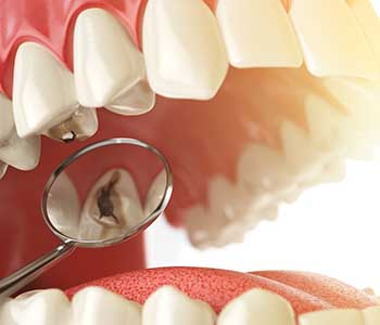 Dr. Palmer on Holistic Dentistry Mercury safe dentistry in Greenville, SC helps keep your smile beautiful and healthy