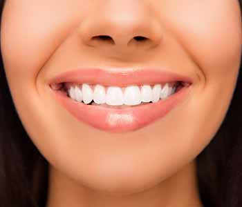 Dr. Palmer on cosmetic dentistry Improving the smile with porcelain veneers from your Greenville dentist