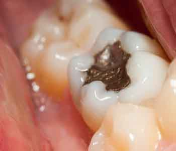 Dr. Palmer Amalgam Filling Removal Amalgam free fillings and amalgam removal services from your dentist in the Greer area