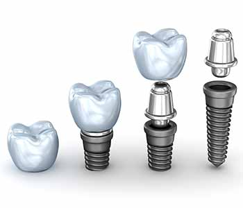 Dr. Palmer Dental Implants Why Zirconia dental implants in Greenville, SC can preserve your smile and health