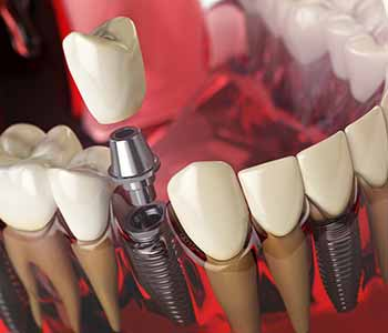 Dr. Palmer Dental Implants Why patients in Greenville, SC would want Zirconia implants vs. titanium implants