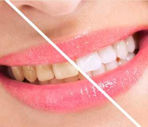At Palmer Distinctive Dentistry, we use the KöR deep whitening system.