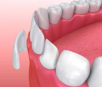 Greenville, SC dentist, Dr. John Palmer offers porcelain veneers to transform a single tooth or an entire smile.