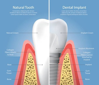 Dr. Palmer Dental Implants Porcelain Zirconia teeth implants are available in Greenville, SC