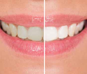 dentist near me provides KöR whitening