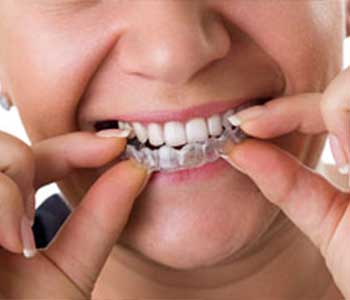 Dr. Palmer Explains Cost Of Invisalign/Clear Correct Treatment