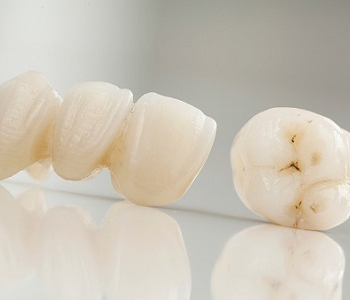 Dr. Palmer on Dental Crowns and Bridges Dental bridges and crowns used to restore Greenville, SC area smiles