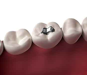 Get Amalgam Filling Removed Greenville from Dr. Palmer
