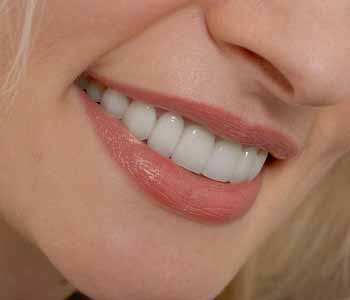 Dr. Palmer on cosmetic dentistry Teeth whitening and other cosmetic services available for patients in the Greenville, SC area