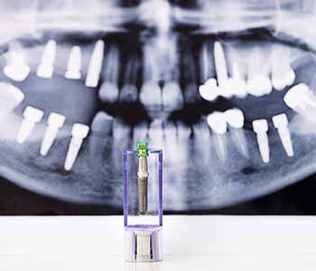 Dr. Palmer Dental Implants Using zirconia implants, your Greenville dentist preserves your healthiest smile