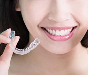 Clear Dental Braces Greenville SC