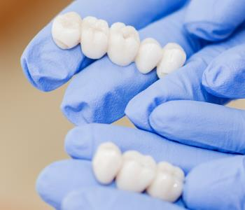 Crowns and bridges for dental restorations from dentist in dentist Greenville