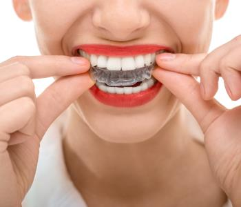 Clear braces for straightening without brackets from dentist in Greenville SC