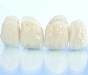 Advantages of CEREC crowns