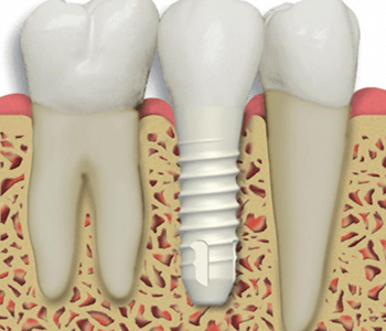 Advantages of Zirconia Implant-Supported Bridges