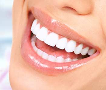 Dental Veneers Treatment in Greenville SC area Image 2