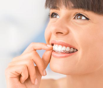 Improve Beauty of Your Smile With Invisalign in Greenville area