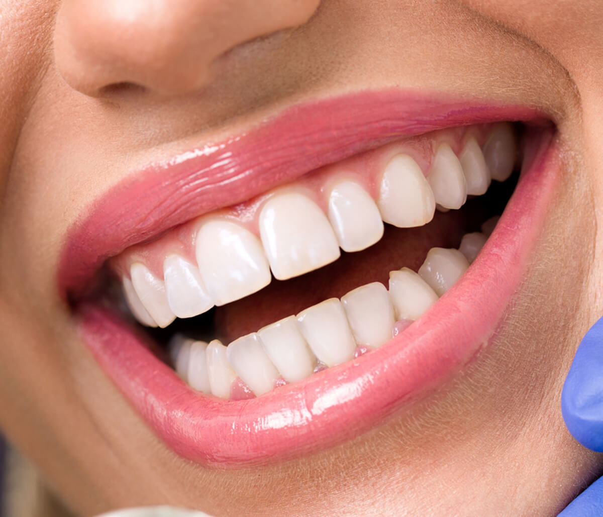 Can You Benefit from Cosmetic Dentistry in Greenville SC Area?