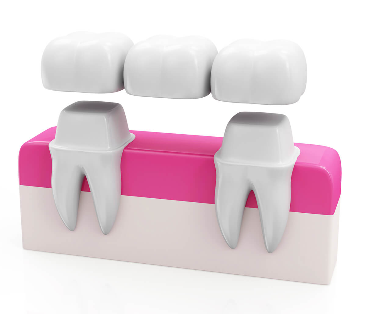 Dental Bridges Procedure in Richmond VA Area