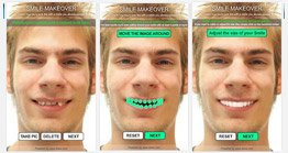 Dentist Greenville SC - Dental Smile Makeover Application