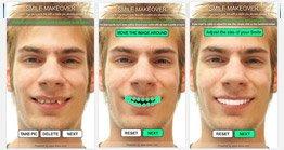 Dental Smile Makeover Application
