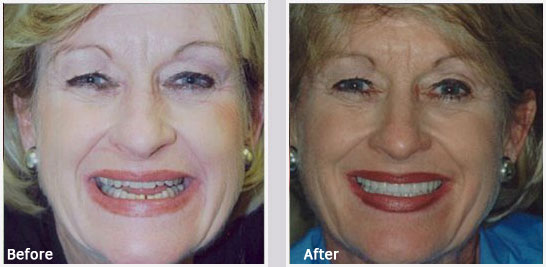 General Dentistry Greenville - Before and After 01