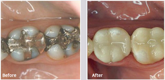 Safe Amalgam Filling Removal Greenville SC - Before and After 01