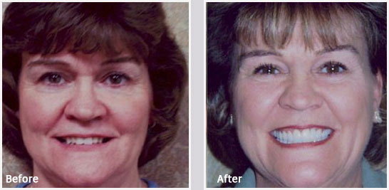 General Dentistry Greenville - Before and After 02
