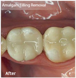Dentist Greenville SC - After Image
