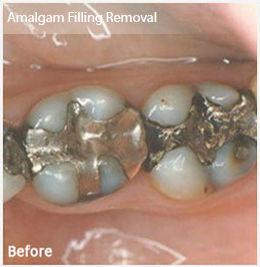 Dentist Greenville SC - Before Image